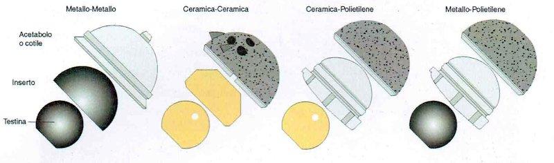 accoppiamento articolare protesi anca - materiali utilizzati