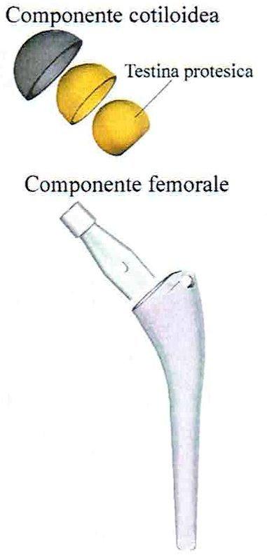 componenti protesi totale anca o artroprotesi