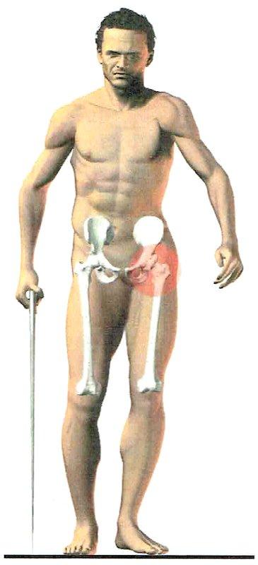 dolore deambulazione - necessario intervento artroprotesi di anca