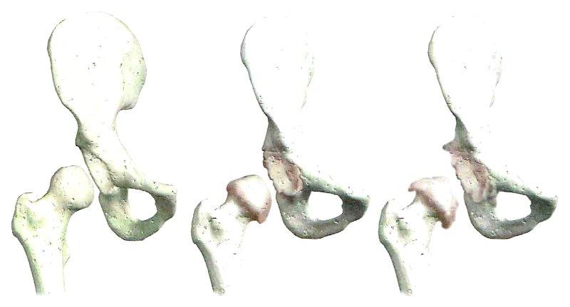 fasi deterioramento articolazione anca