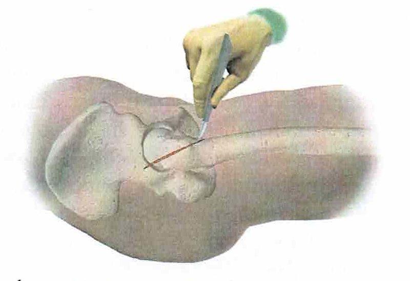 intervento di artroprotesi d'anca - fase 1: incisione della cute