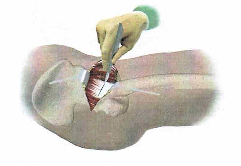 intervento di artroprotesi d'anca - fase 2: incisione dei tendini