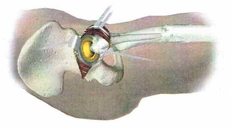 intervento di artroprotesi d'anca - fase 6: inserimento protesi femorale
