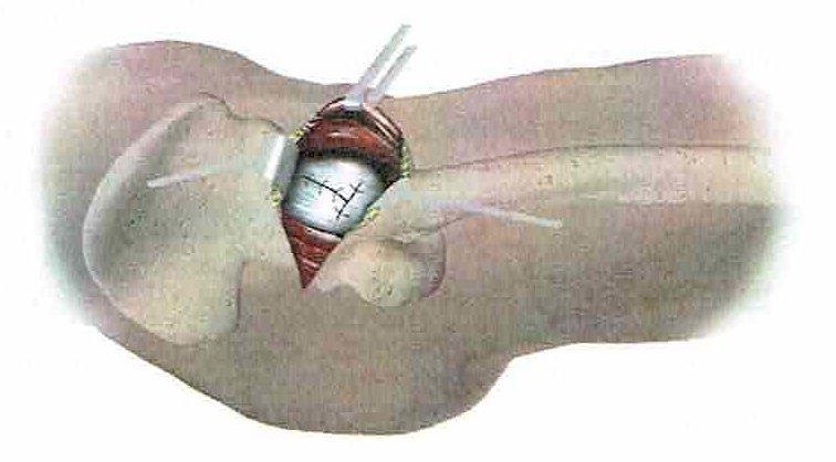 intervento di artroprotesi d'anca - fase 7: sutura capsula
