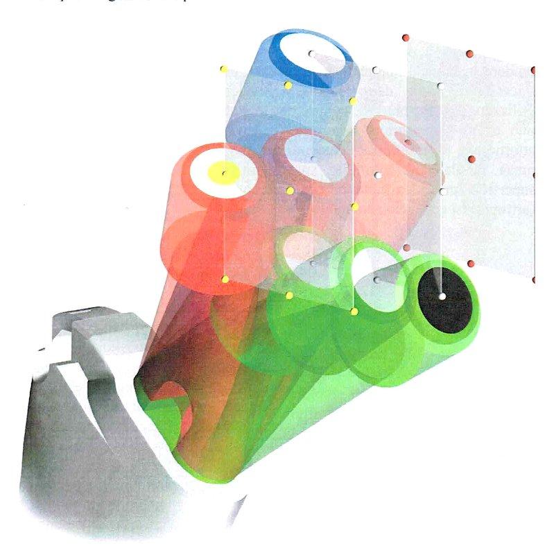 Diversi modelli di protesi a confronto
