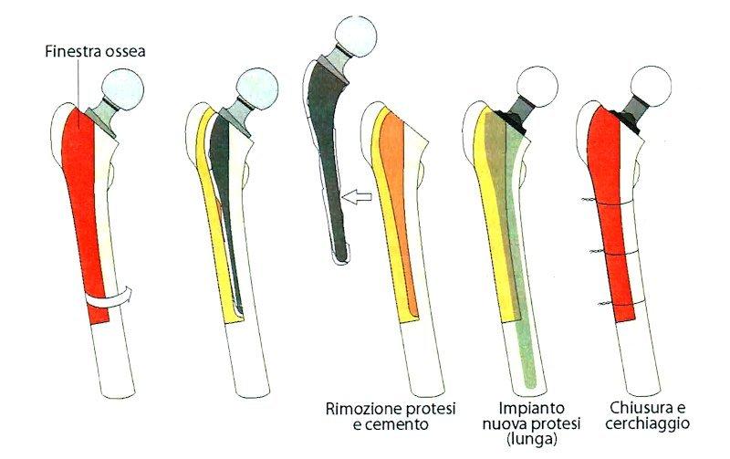 rimozione-reimpianto protesi anca